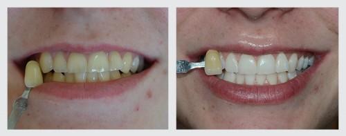 3.zuby