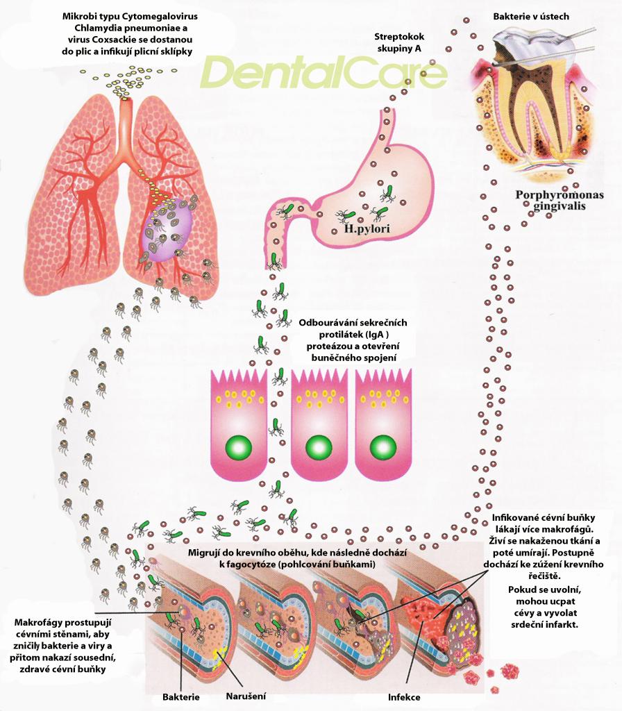 Baterie v ústech