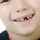 mléčné zuby